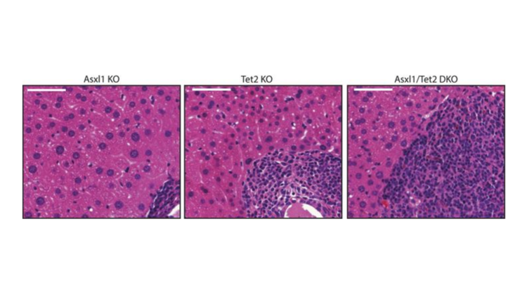 Deletion of asxl1 results in myelodysplasia and severe developmental defects in vivo